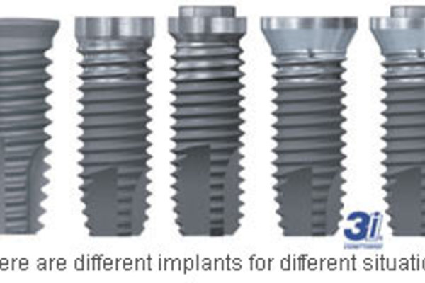 3i-different-implants.jpg